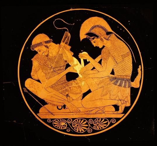 Copa de figuras rojas (s. V a.C) que muestra a Aquiles vendando las heridas de Patroclo durante la guerra de Troya como ejemplo de medicina griega prehipocrática